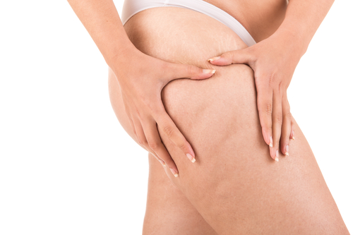 Mount-Sinai-NY-cellulite-removal