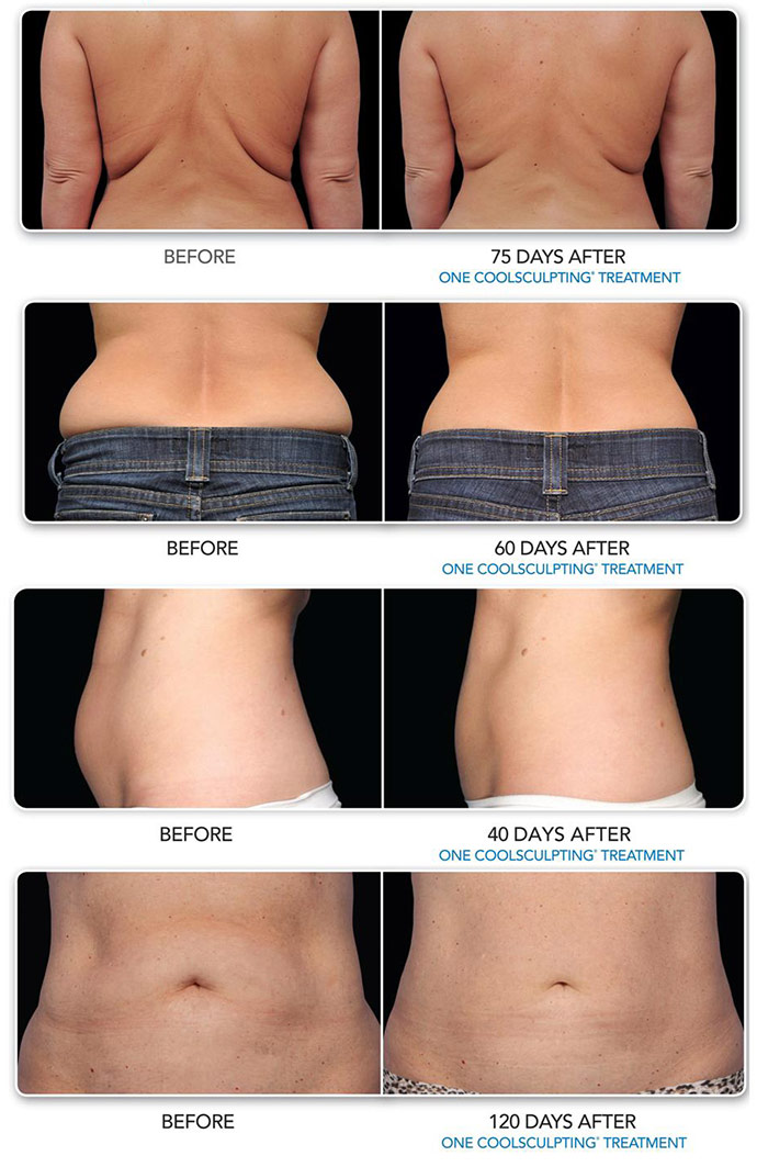 Coolsculpting Experience The Latest Technique In Body