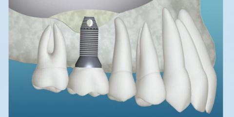 dental-implants-New-London-CT