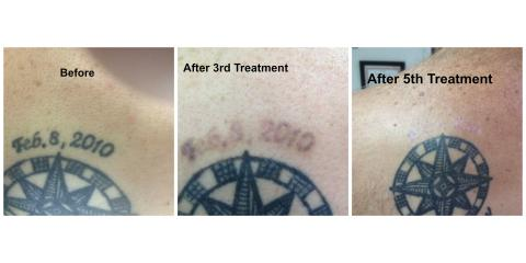 The Tattoo Removal Process Isn T A One Ointment Fix It Takes Several Visits In Order To Remove Entire From Your Body