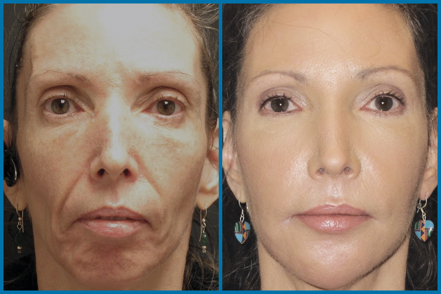 Stem cell facial rejuvination