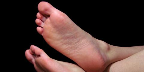 muco cutaneous cyst on top of toe