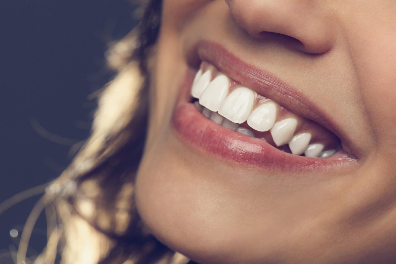 Discover the Benefits of Porcelain Veneers \u0026 Dental Bridges ...