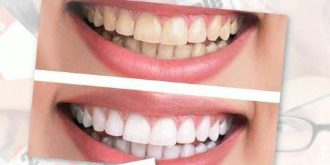 Ripon-WI-cosmetic-dentistry