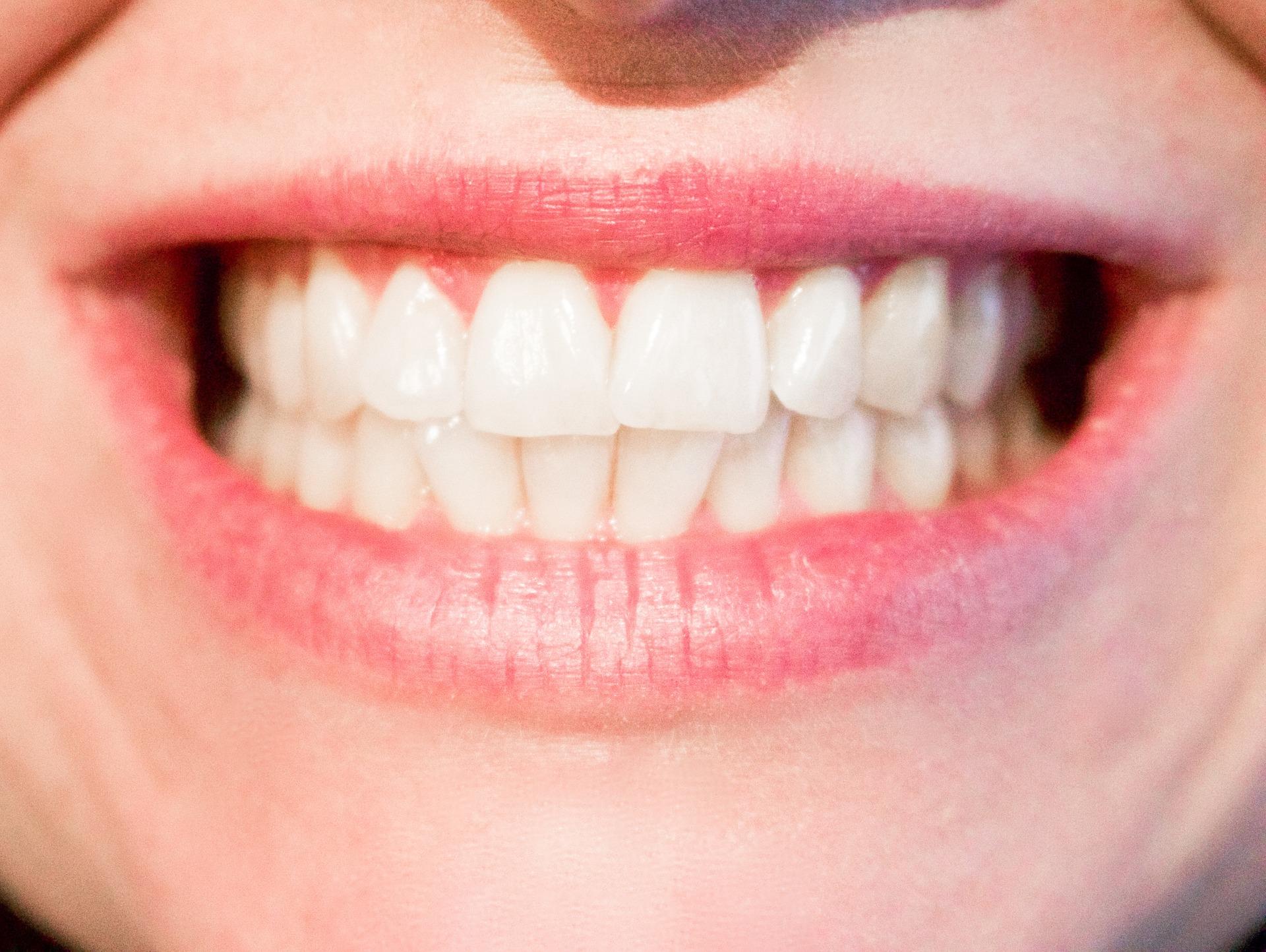 teeth-whitening-Kaimuki-Dental-Group-HI